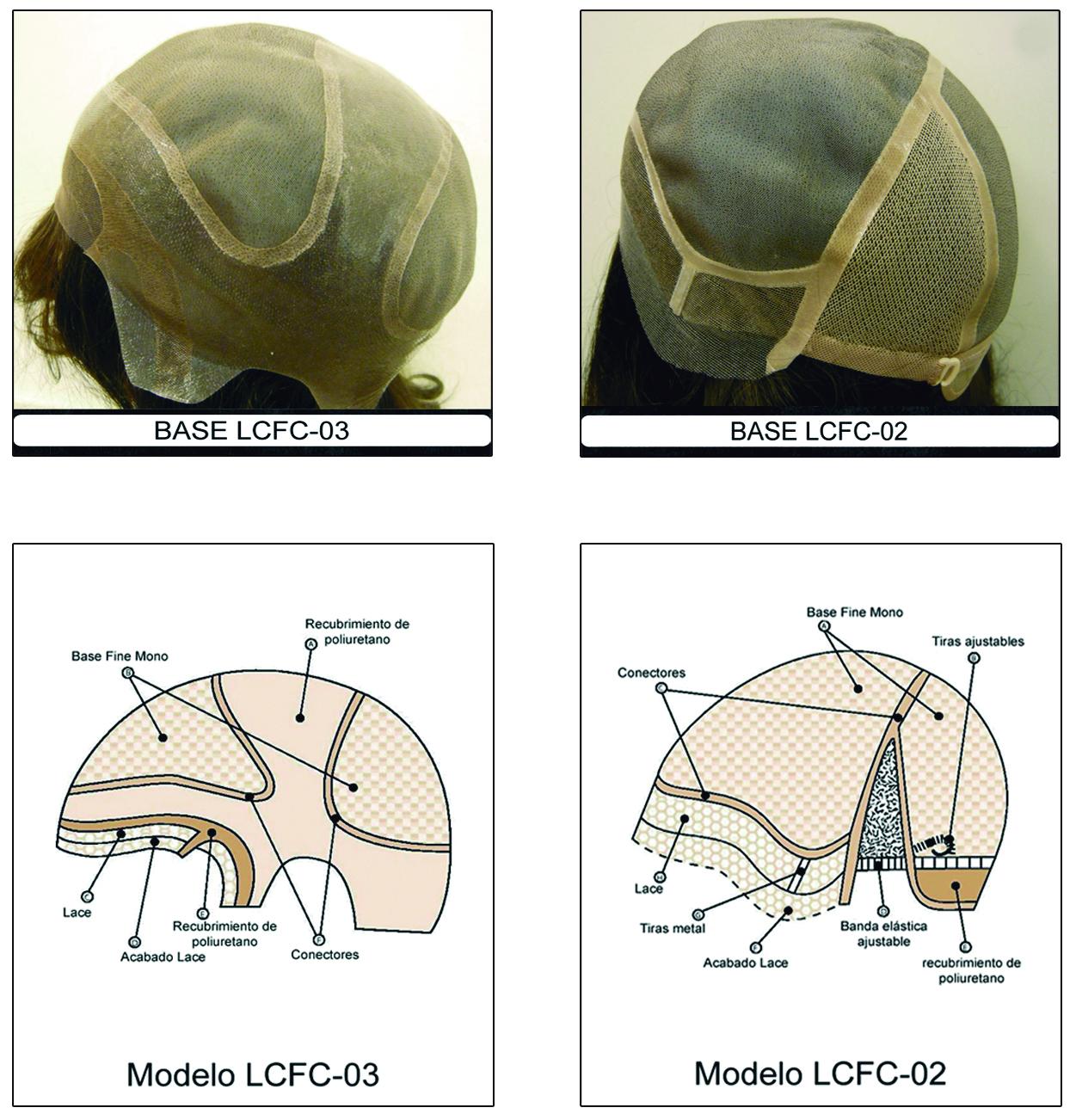 Propesis-capilares-a-medida-para-alopecia